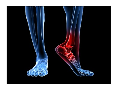 Кт голеностопного сустава цена болит колено и опухло и температура