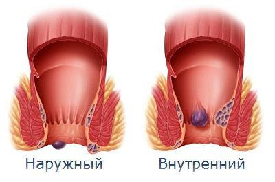 наружные геморроидальные шишки фото