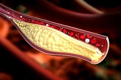 Уровень холестерина может быть повышен при